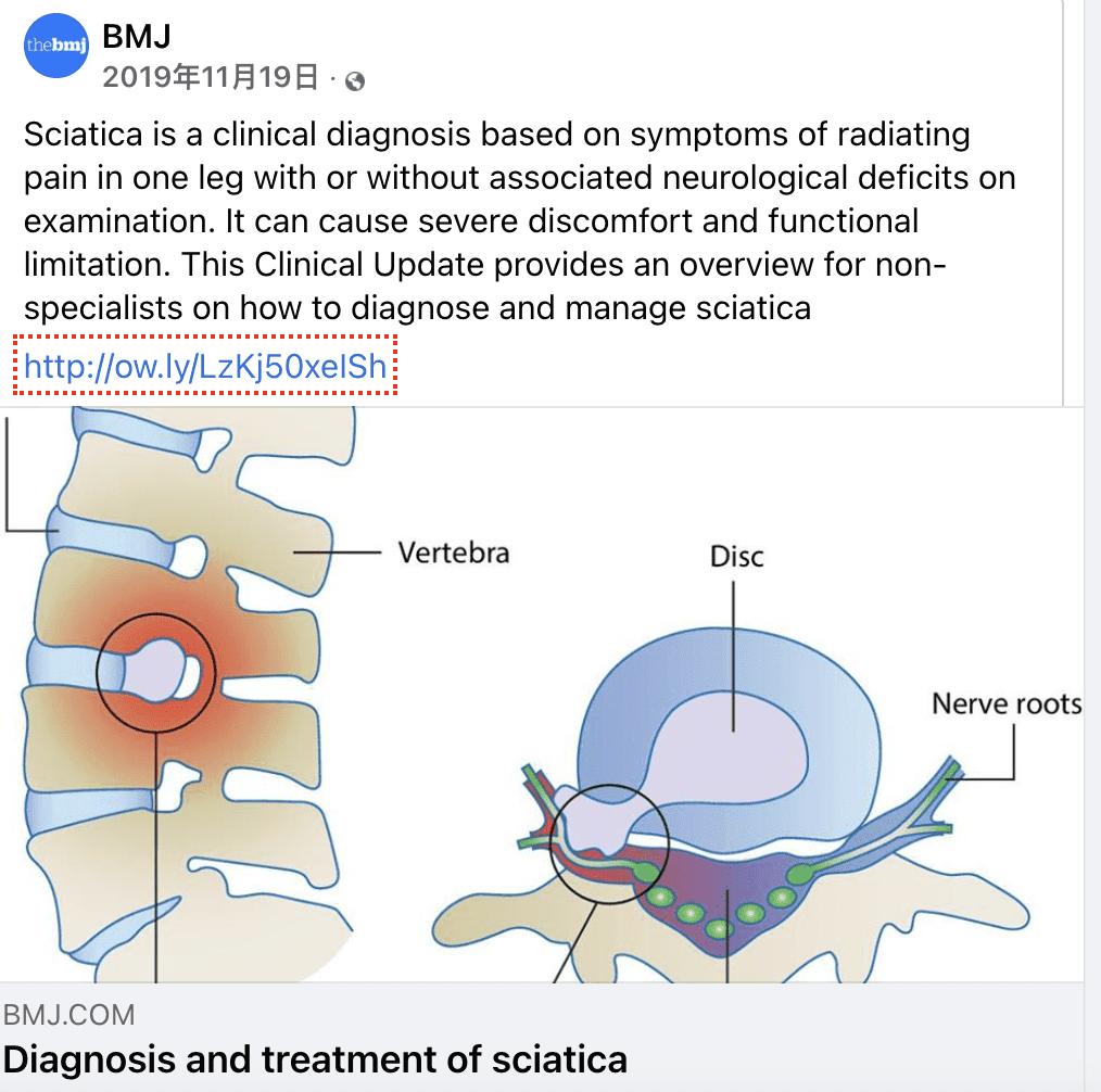 英國醫學期刊2019年11月對坐骨神經痛的建議